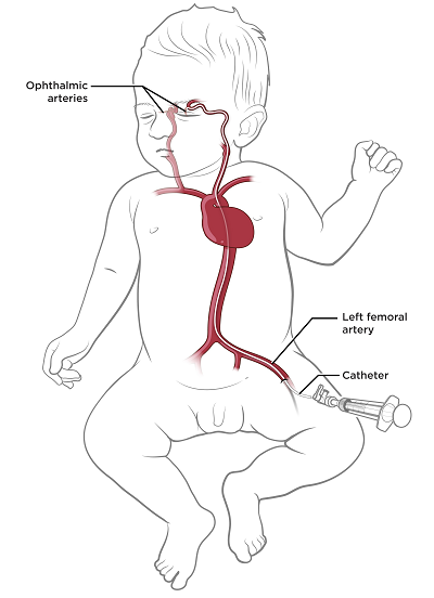 Figure 1. Inserting the catheter