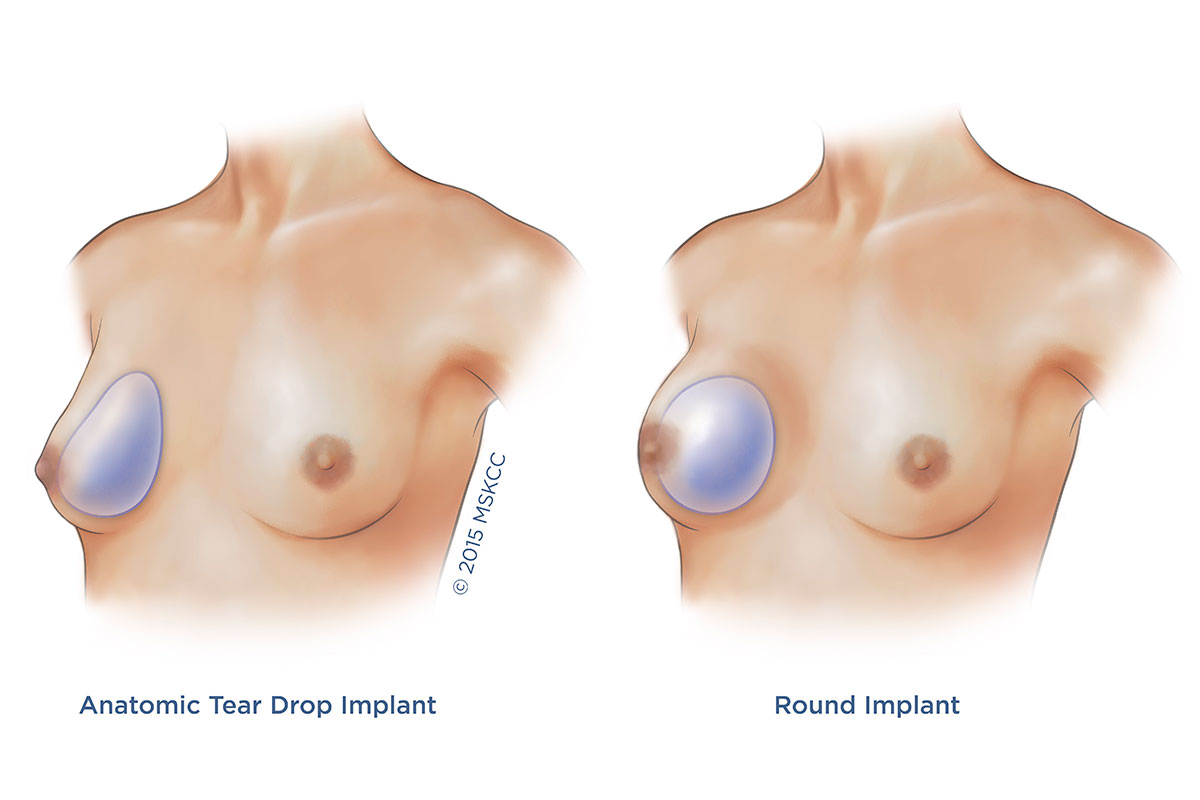 Anatomic or tear-drop breast implants (right) and round breast implants (left)