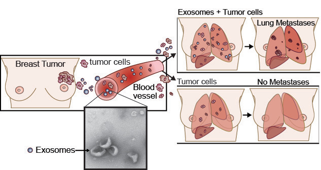 Schematic illustration showing progression from left to right of exosomes spreading from breast tumor through blood vessel to lungs and liver in human torsos on the right.