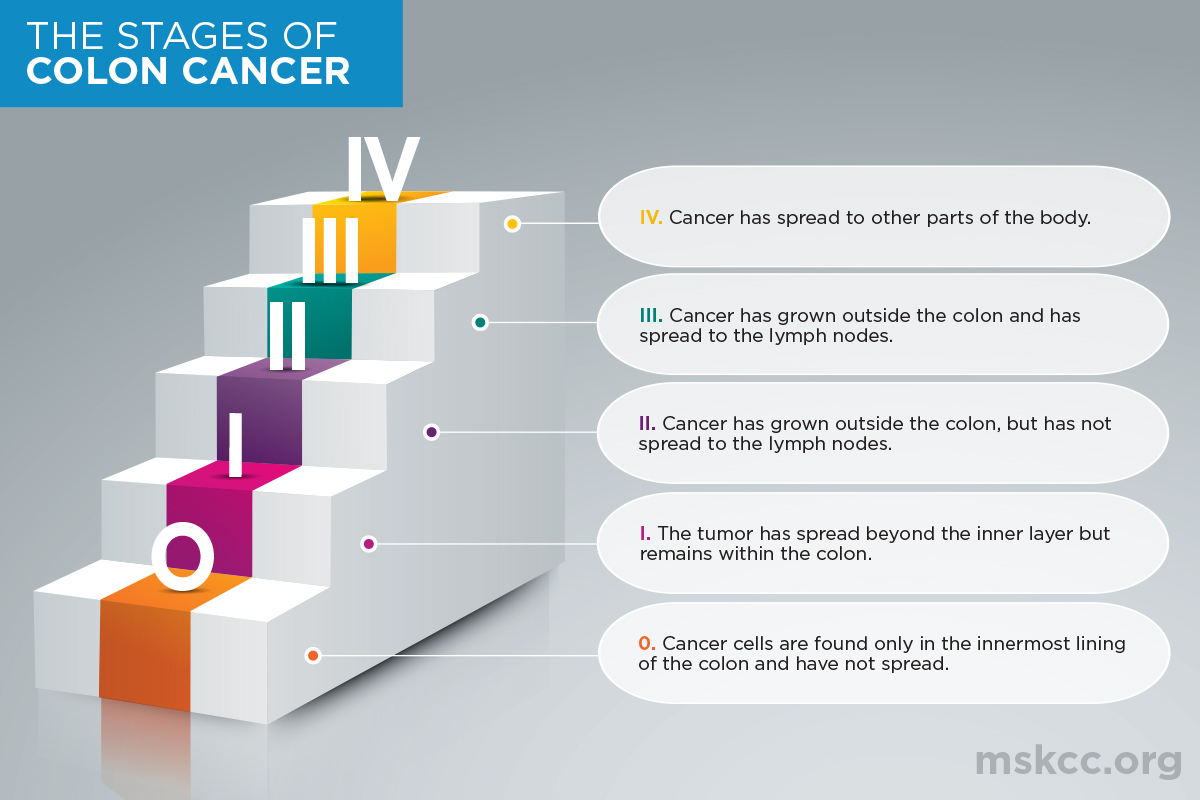 Stages Of Colon Cancer Memorial Sloan Kettering Cancer Center