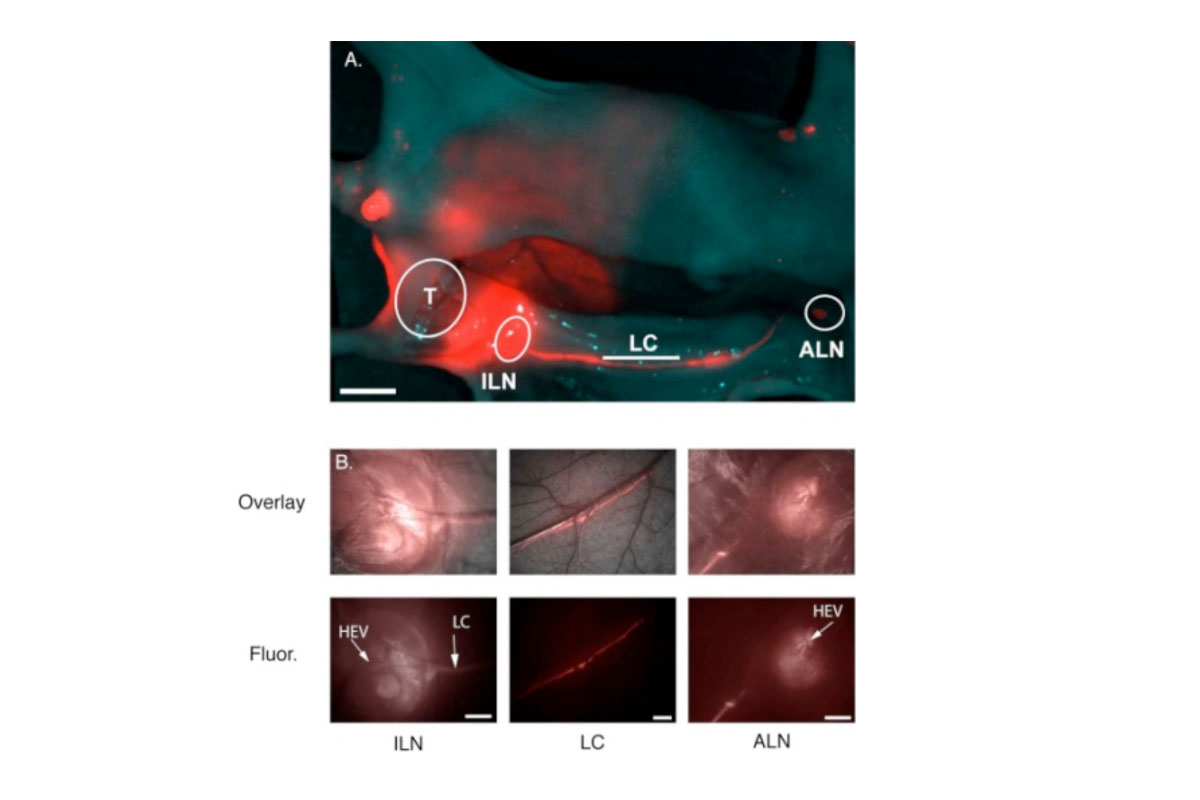 Nodal mapping using multiscale NIR fluorescence imaging