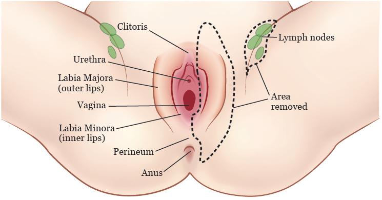 Vaginal Cancer: Stages CancerNet