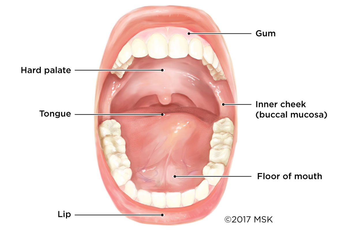 Cancer Of The Mouth Can Begin Anywhere In The Oral Cavity, Including The  Lips, Floor Of Mouth, Tongue, Inner Cheeks, Hard Palate (roof Of The Mouth),  ...