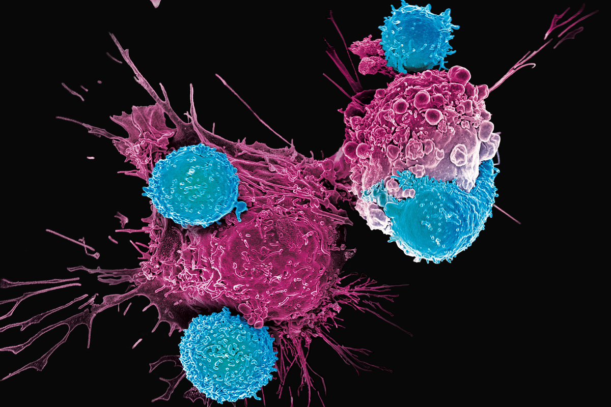 CAR T Cells: Timeline of Progress