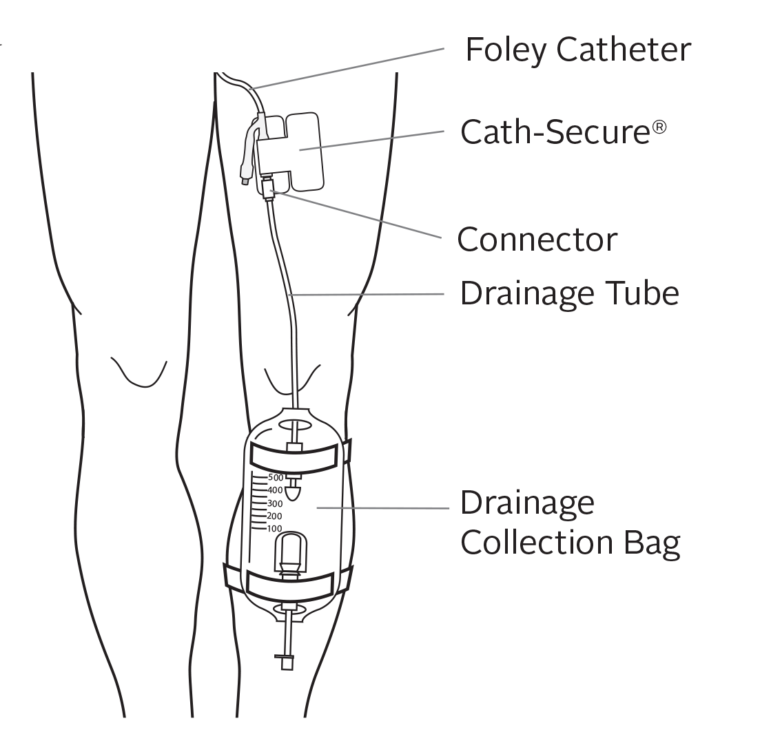 Caring For Your Urinary Foley Catheter Memorial Sloan