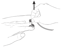 Figure 5. Removing the needle