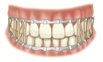 Figure 2. Arch bars and rubber bands