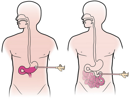 Figure 1. PEG tube placement (left) and PEJ tube placement (left)