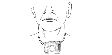 Figure 5: Moistened gauze placed over the tracheostomy tube opening
