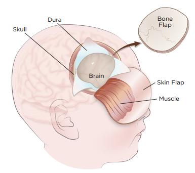 Brain Tumor Adults 71