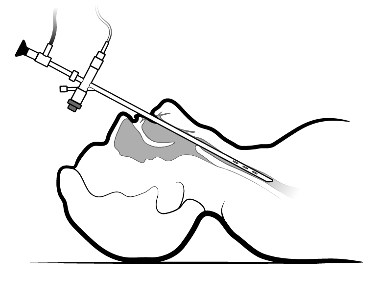 Figure 1. Inserting the bronchoscope