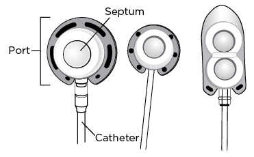 Figure 1: Examples of implanted ports