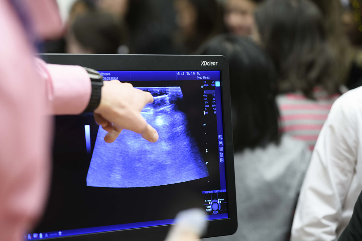 Hand pointing at a scan