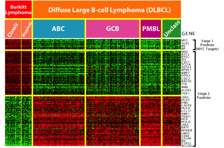 DNA-microarray analysis of Burkitt's lymphoma and diffuse large B cell lymphoma (DLBCL) showing differences in gene expression patterns. Colors indicate levels of expression; green indicates genes that are overexpressed in normal cells compared to lymphoma cells, and red indicates genes that are overexpressed in lymphoma cells compared to normal cells. (Image from cancer.gov)