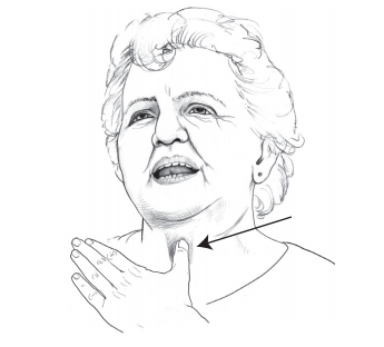 Figure 10. Finger occlusion for TEP speech, front view