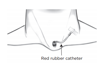 Figure 13. Taping catheter to neck