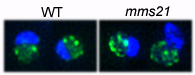 mms21 mutations lead to the disruption of telomeric (green) and nucleolar (blue) structures
