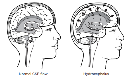 Figure 1: Brain without and with hydrocephalus