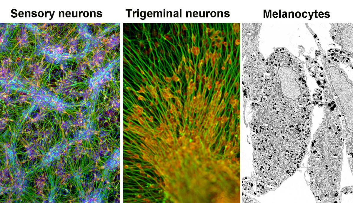 Sensory neurons of the peripheral nervous system and NC-derived melanocytes
