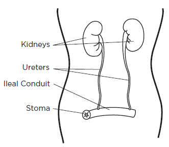 Figure 2. Your ileal conduit