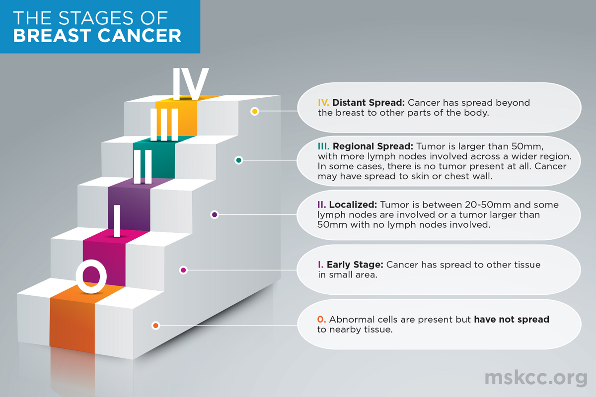 Stages Of Breast Cancer Memorial Sloan Kettering Cancer Center