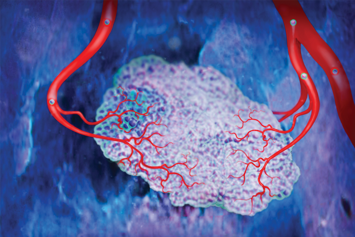 Rendering of a primary tumor mass with adjoining blood vessels (shown in red). Cells that have detached from the tumor and entered the bloodstream (shown as spheres) may circle back to the tumor and enhance its growth and aggressiveness.