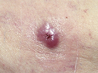 An example of Merkel cell carcinoma