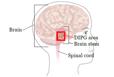 Figure 1. Your brain stem and DIPG