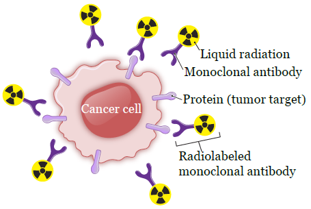 Figure 2. Radiolabeled monoclonal antibody attaching to cancer cell