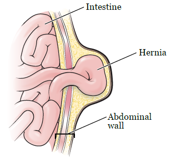 About Your Abdominal Incisional Hernia Surgery | Memorial