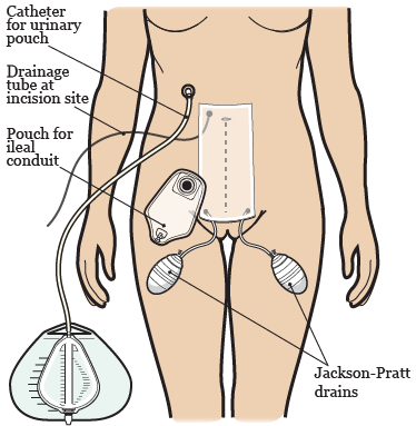 Figure 3. Tubes, drains, and pouches after your surgery