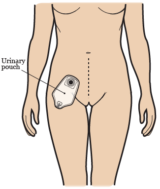Figure 4. Your urinary pouch