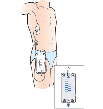 Figure 11. Drainage bag below the catheter
