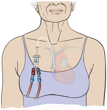 Figure 4. A CVC in the chest