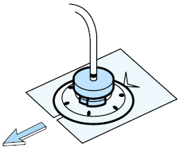 Figure 5. Sliding the Telfa under the disk, around the catheter