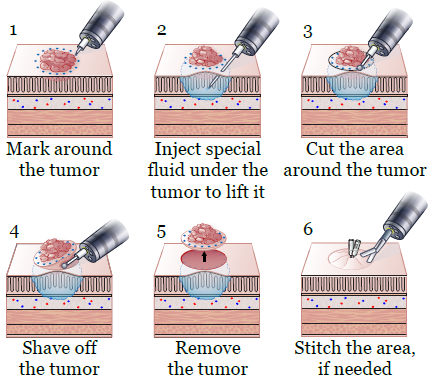 Figure 2. Tumor removal process