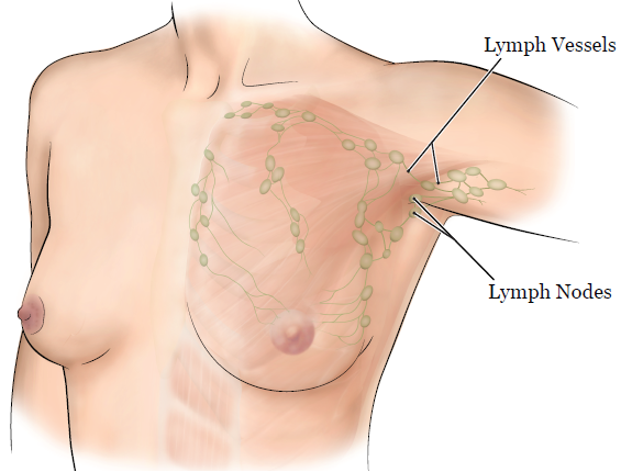 About Your Lumpectomy And Axillary Surgery Memorial Sloan Kettering Cancer Center