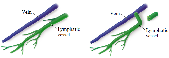 Figure 1. Rerouting a blocked lymphatic vessel