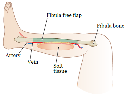 About Your Mandibulectomy and Fibula Free Flap Reconstruction