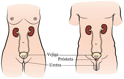 puede sacar un catéter para dañar la próstata