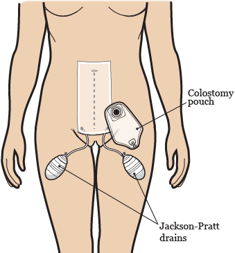 Figure 3. Drains, pouches, and bandages after your surgery