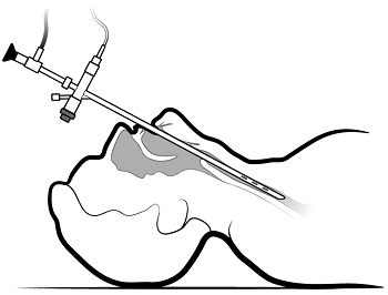 Figure 2. Inserting the bronchoscope