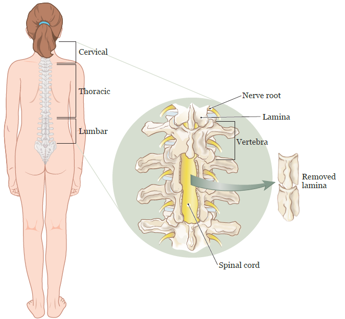 About Your Spinal Cord Tumor Surgery For Pediatric Patients