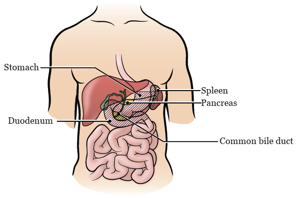 Figure 2. The organs that will be removed during your surgery