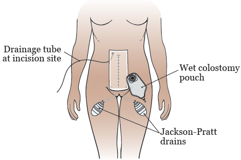 Figure 5. Drains, pouch, and bandages after your surgery