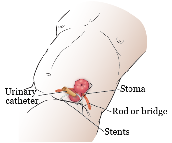 Figure 6. Tubes in your stoma