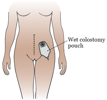 Figure 7. Your wet colostomy pouch