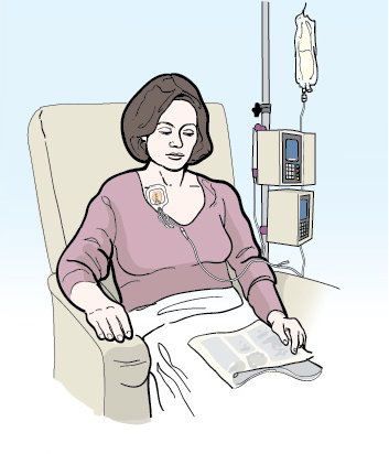 Figure 4. A person receiving chemotherapy through a catheter