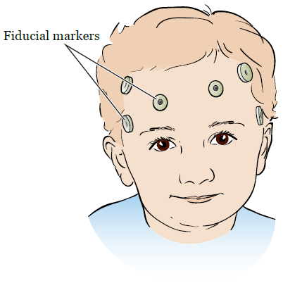 Figure 1. Fiducial markers