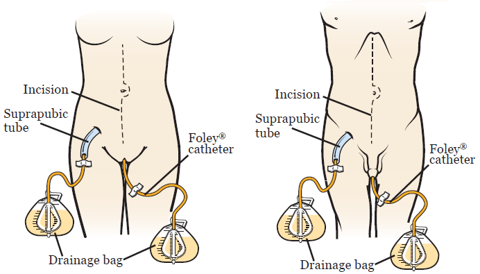igure 1. Female anatomy (left) and male anatomy (right) with suprapubic tube and Foley® catheter